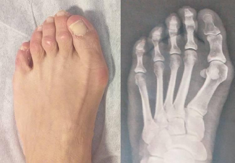 Imagenes y radiografias prequirurgicas