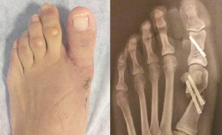 foto y radiografía después de la cirugía percutanea