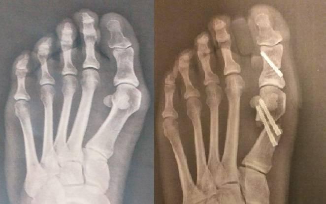 radiografia antes y despues