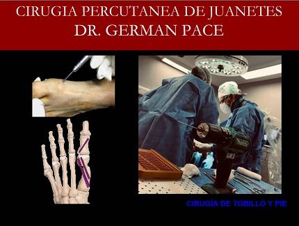 Cirugia percutanea de juanetes tecnica MICA