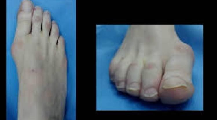 cirugia de pies juanetes