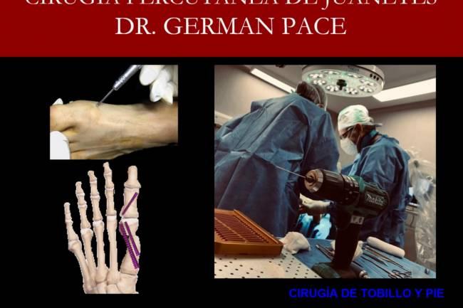 Cirugía percutánea de juanetes Técnica MICA
