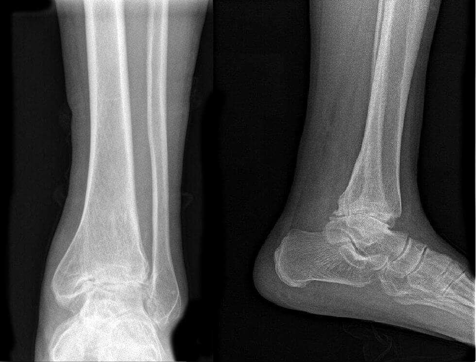 Artrosis de tobillo