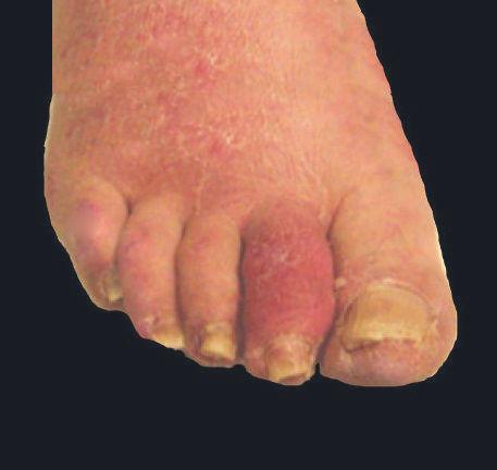 Artritis psoriatica y dedo salchicha