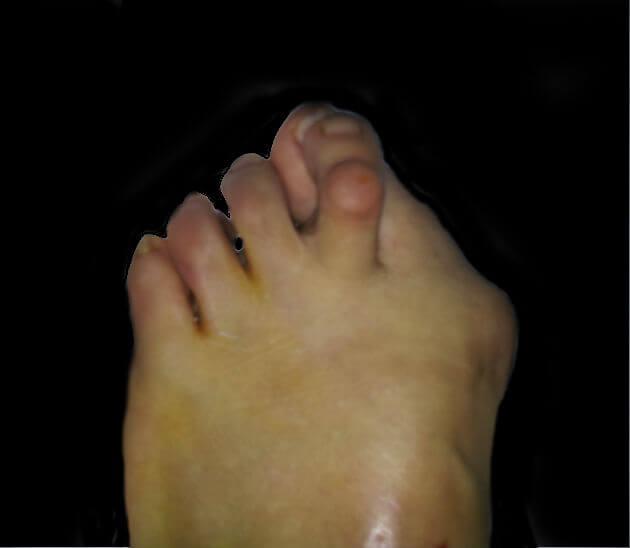 Artritis reumatoide de pie y tobillo