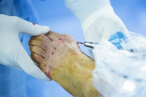 cirugía de pie y tobillo