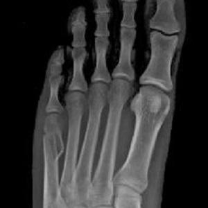 Dolor de pie causas traumaticas