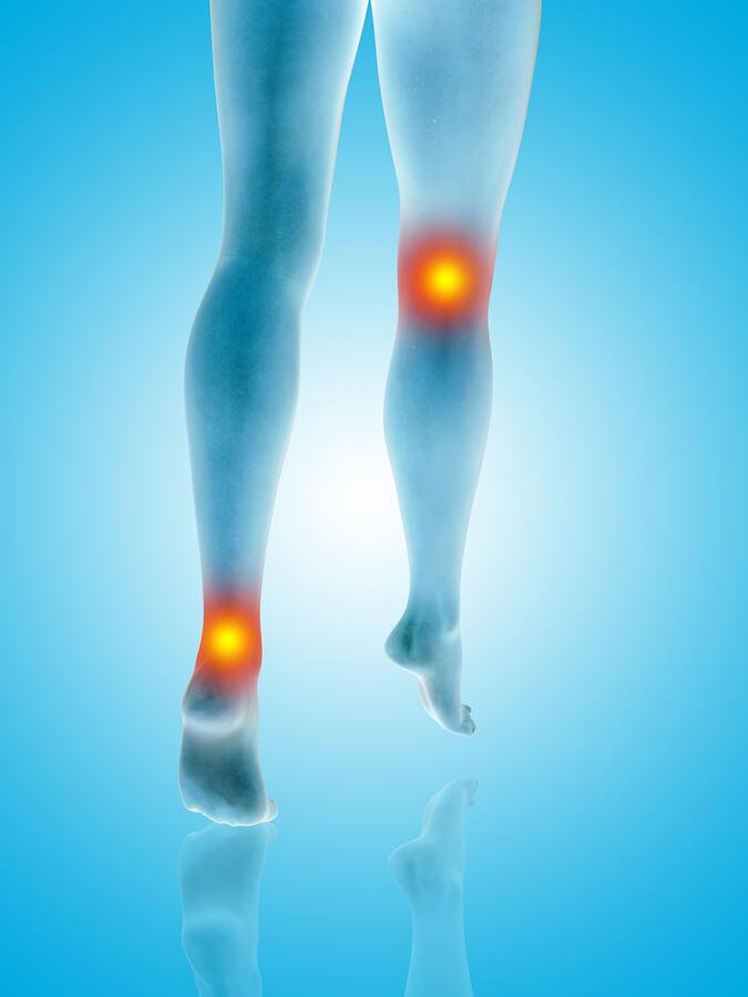 zonas de Lesion Muscular