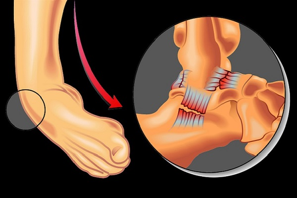 Lesiones Traumaticas del tobillo