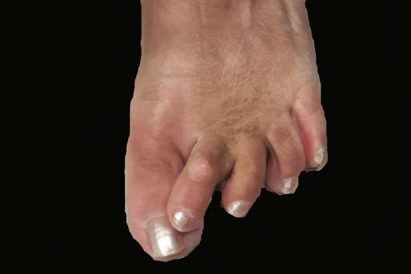 Artrosis de Pie y Tobillo