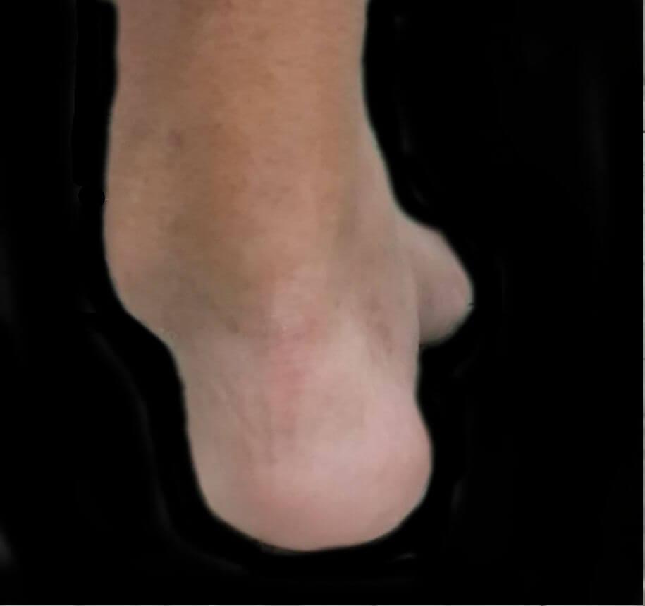 vista  posterior de pie cavo