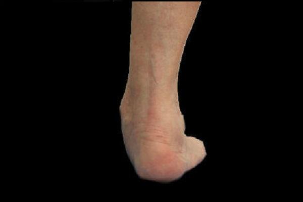 vista posterior de pie plano posterior