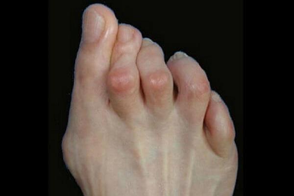 Patologias de Dedos menores