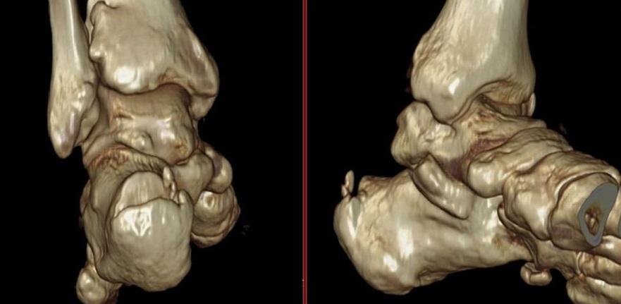 Imagen de Entesitis aquiliana en Tomografia 3 D