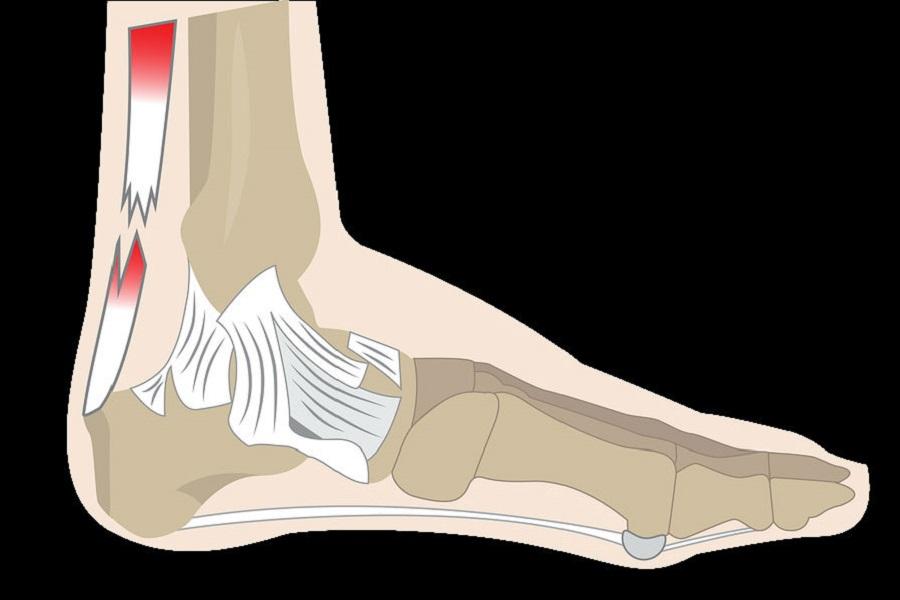 Ruptura del tendon de Aquiles
